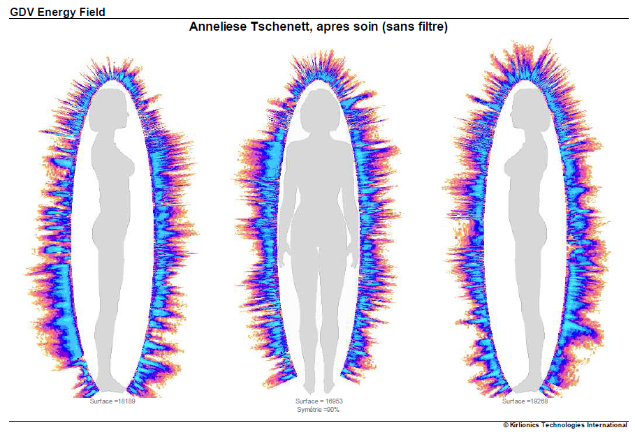 Les effets d'un soin Rajeunir mesurés  par un appareil quantique